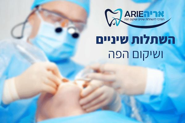 אריה המרכז להשתלות שיניים ושיקום הפה