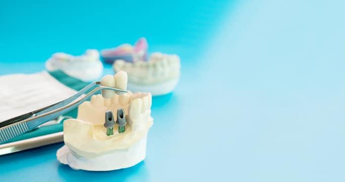 השיטות השונות של הליך השתלת שיניים