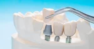 שתלים לשיניים – למי? מתי? והנחיות נוספות