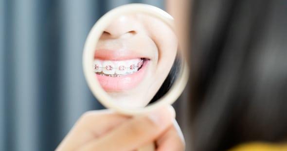 יישור-שיניים-לילדים