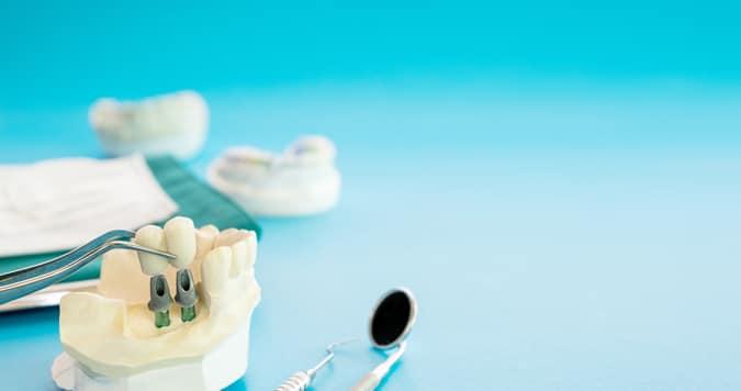 סוגי שיניים תותבות
