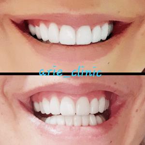 ציפוי שיניים לסת עליונה