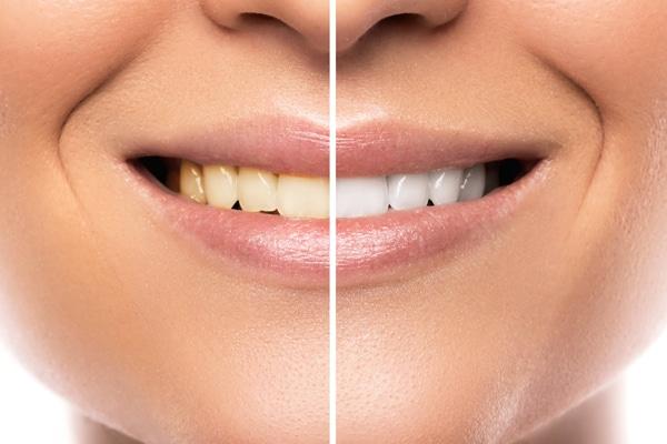 תמונות-שיניים-לפני-ואחרי